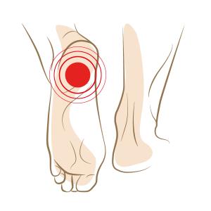 Peesplaatontsteking-loop zonder pijn