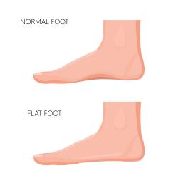 flat-foot-platvoet-fallen-arch