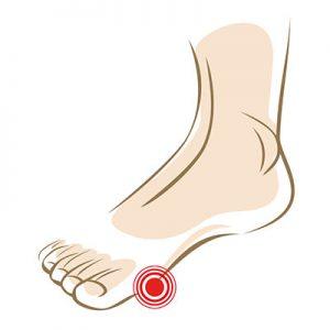 Pijn-voorvoet-loop-zonder-pijn